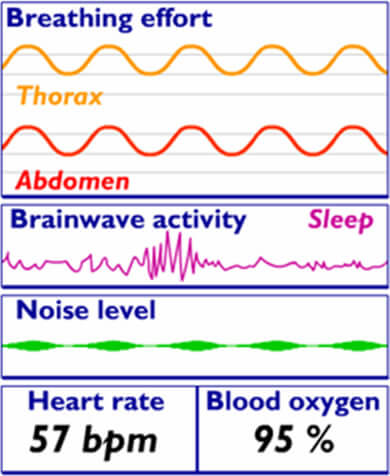 Sleep study data chart